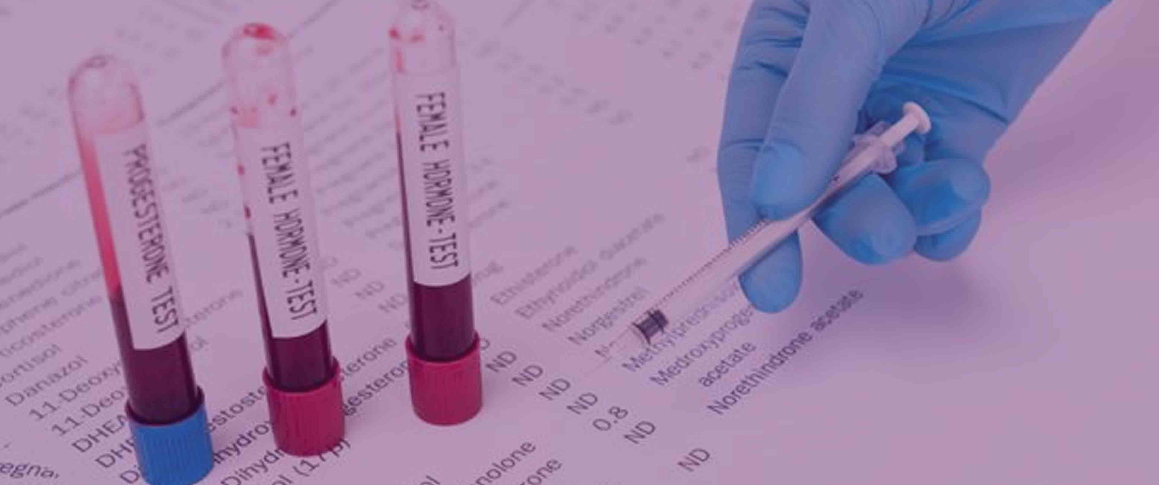 آزمایش هورمون زنانه