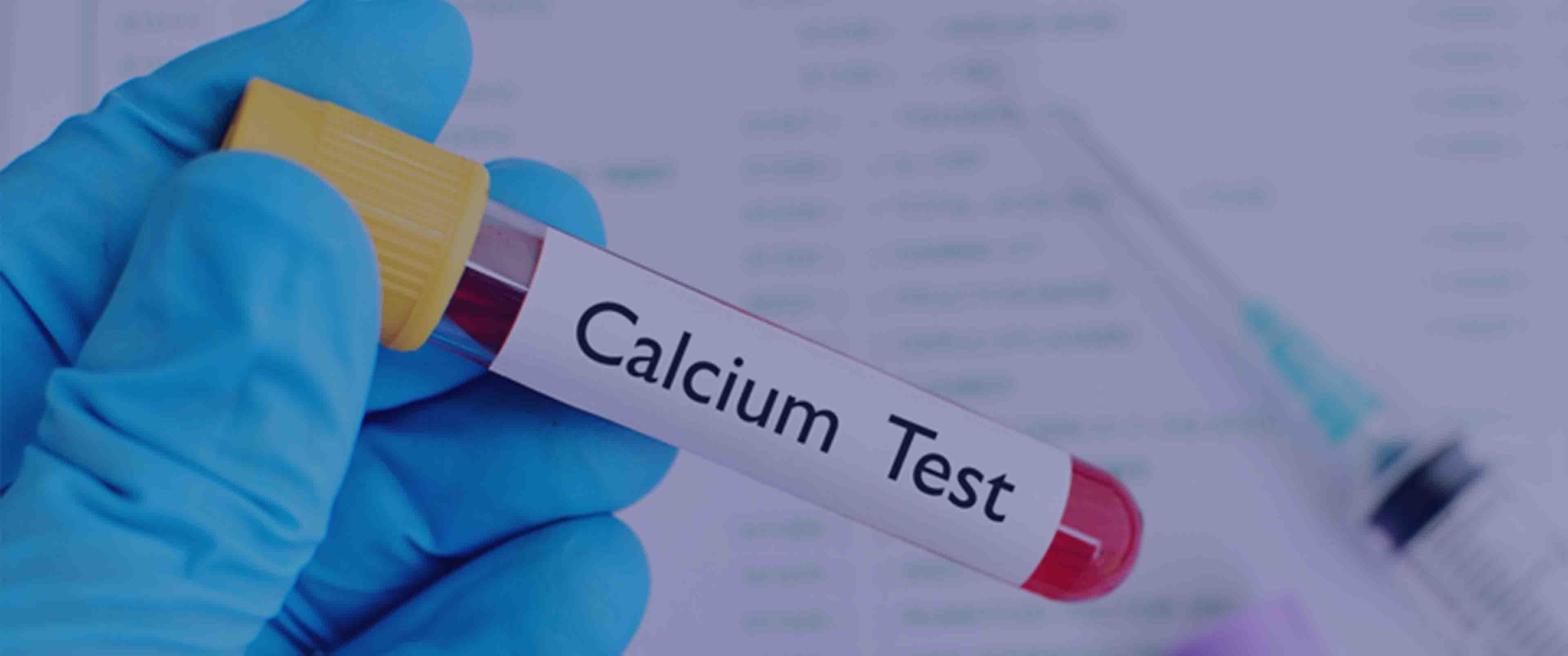 آزمایش Calcium