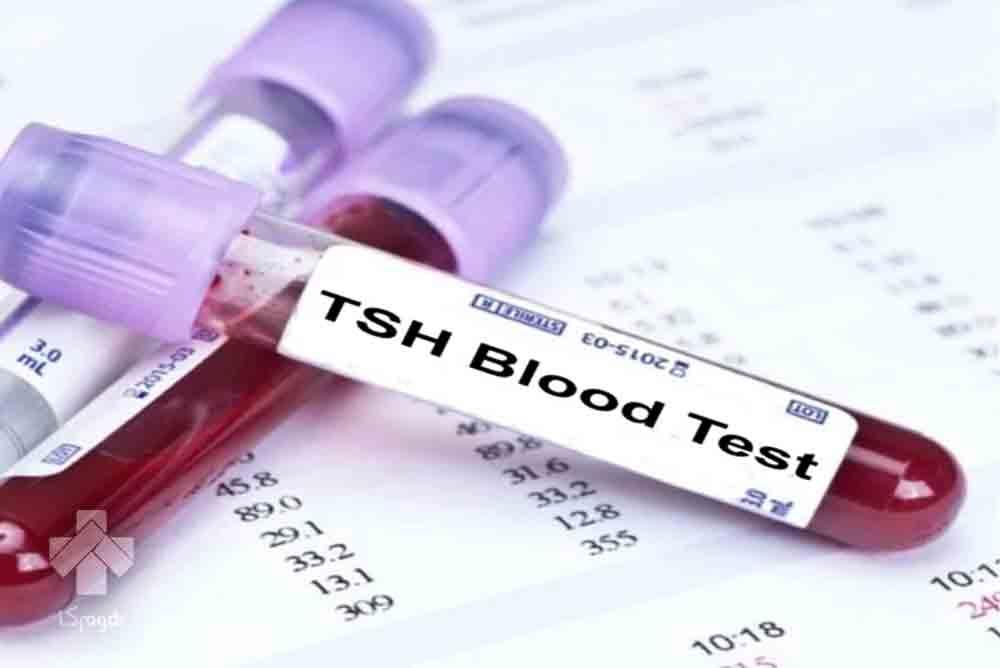آزمایش TSH