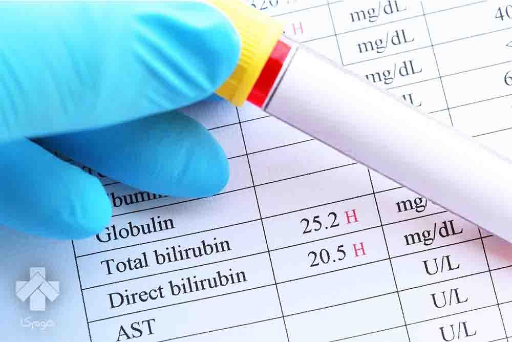 آزمایش Bilirubin Total