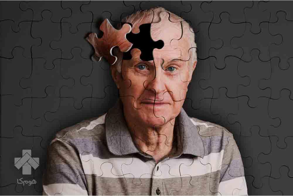 فیزیوتراپی بیمار آلزایمر در منزل
